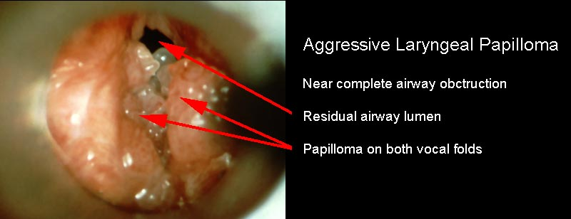 recurrent laryngeal papillomatosis treatment