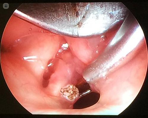 warts and cancer link papilloma virus della gola