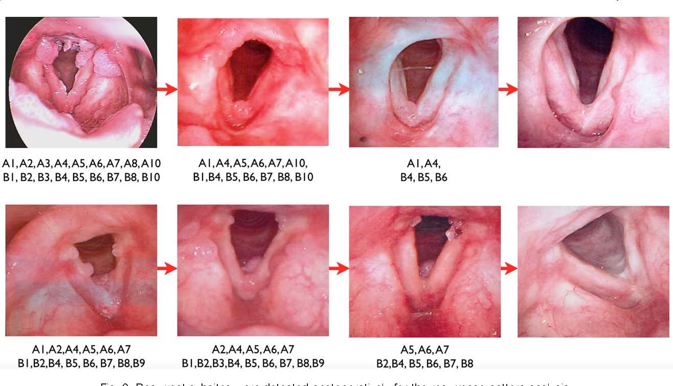 respiratory papillomatosis bevacizumab