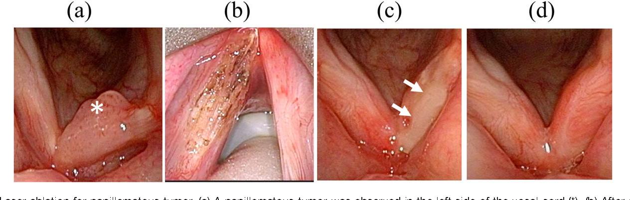 unde se localizeaza cancerul la san tratamiento de papilomatosis en caballos