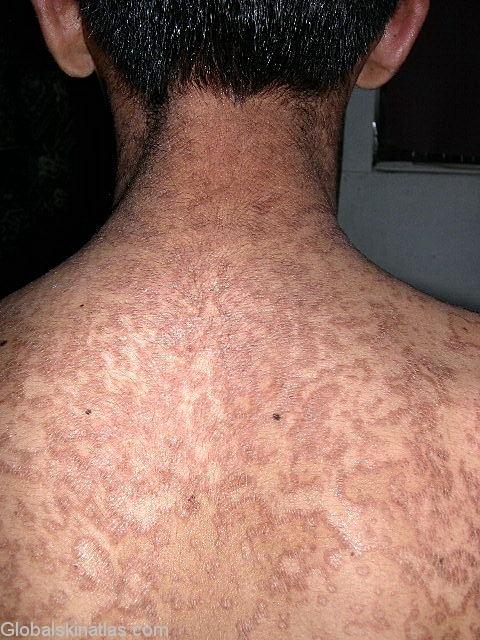makalah enterobiasis hpv mouth genital warts