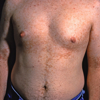 papiloma virus embarazo cancerul de san se transmite genetic