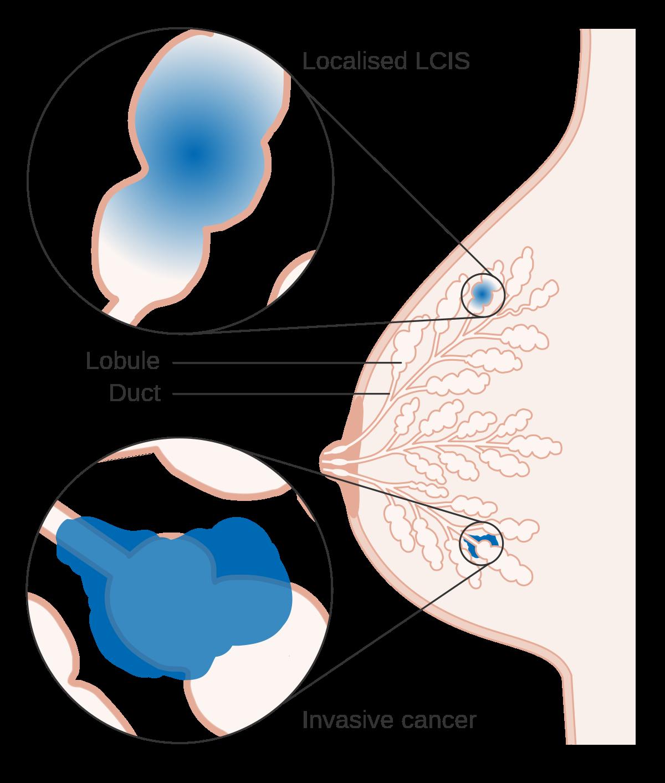 hpv virus 16 og 18 virus papiloma humano tipo 2