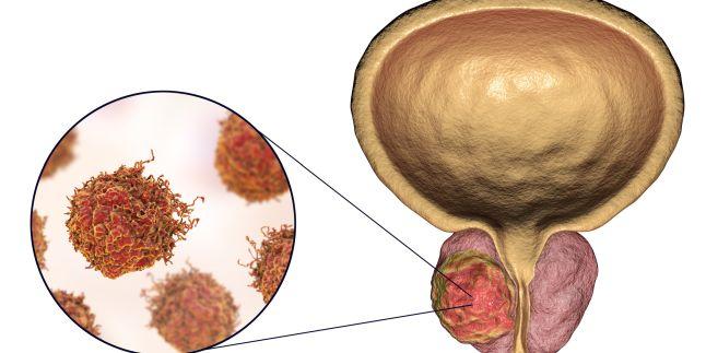 se trateaza cancerul de prostata