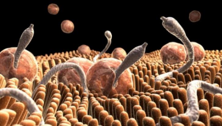 simptome paraziti cancer pulmonar higado