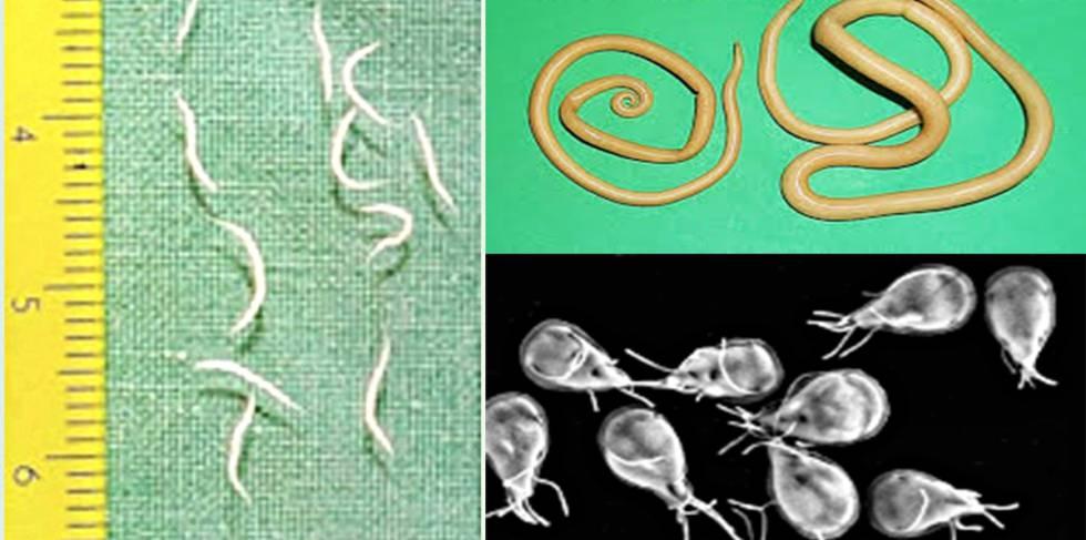 sintomas de parasitos en ninos oxiuros