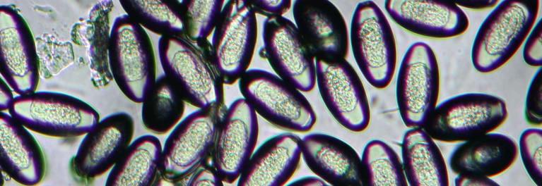 Microbiología Basica