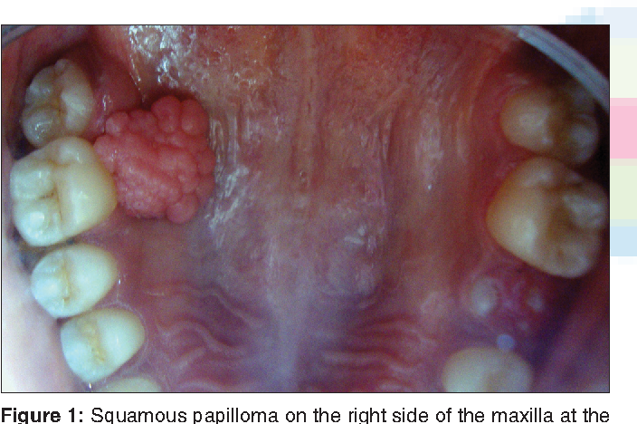is squamous papilloma always hpv)