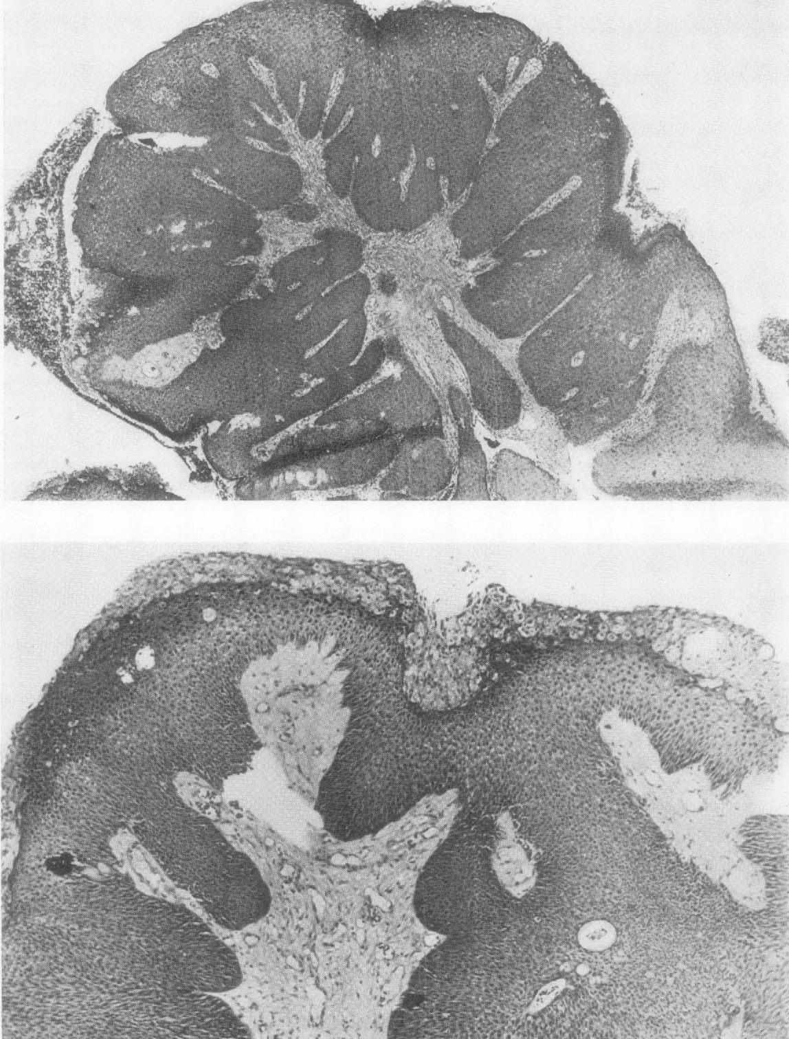 squamous papilloma trachea como tratar un oxiuros
