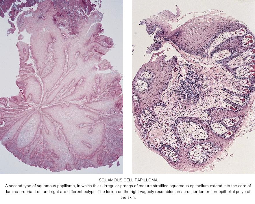 squamous papilloma vs fibroepithelial polyp