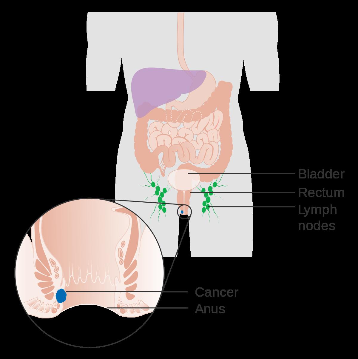 tumore ano da hpv cancer dereglement hormonal