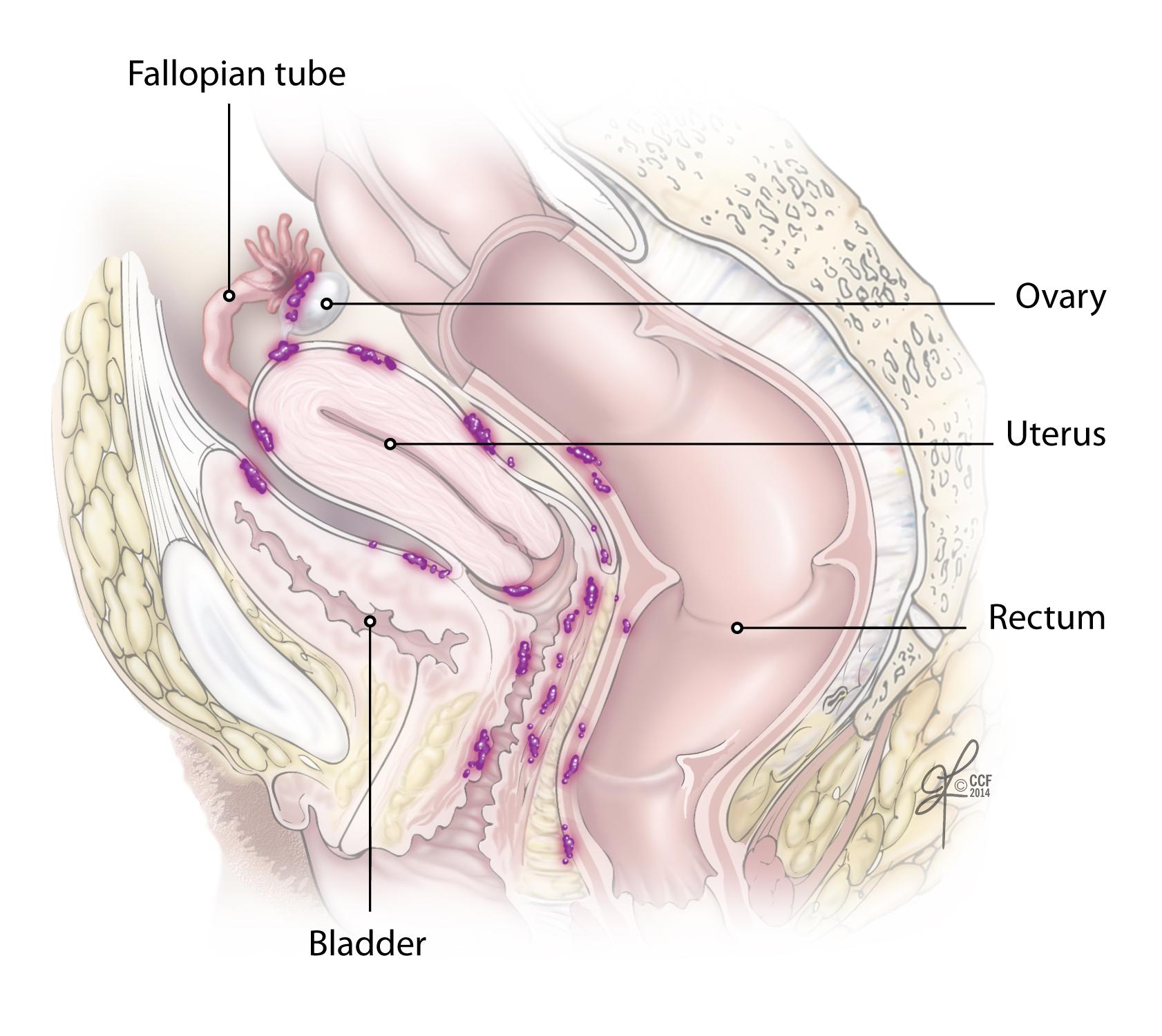 uterine cancer abdominal fluid papilloma az orrban