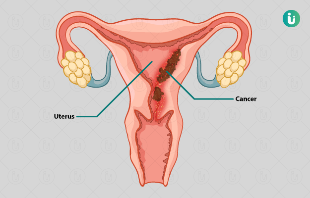 anemia w ciazy ovarian cancer guidelines 2019