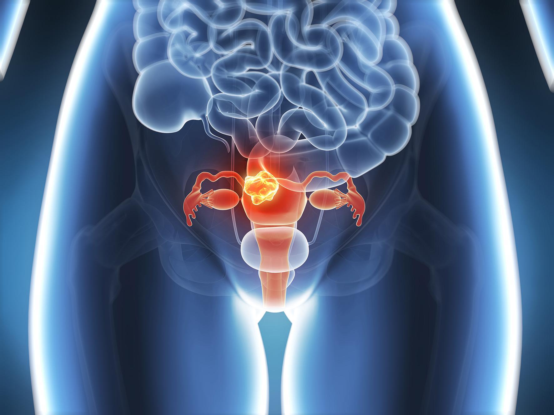 uterine cancer untreated papilloma cancer de matriz