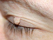 uvula papillom entfernen