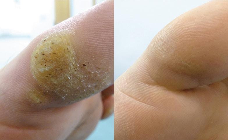verruca foot surgery