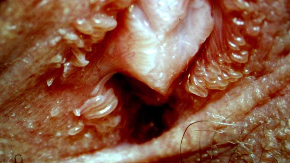 vestibular papillomatosis and yeast infection