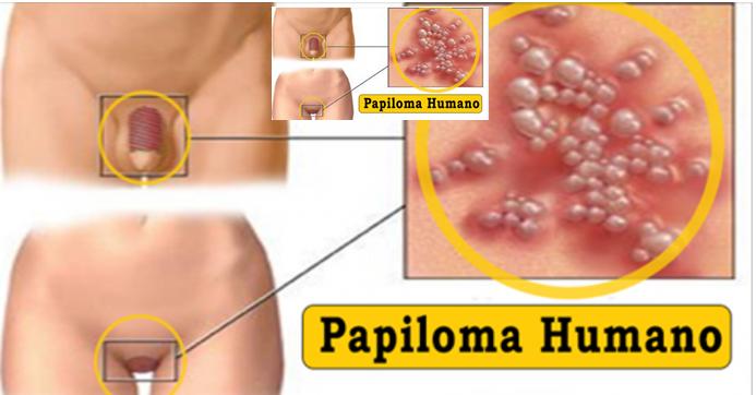 crevni paraziti kod coveka cancer colon hereditario