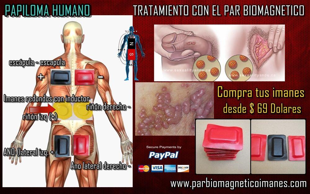 human papilloma virus negatif cancer la san campanie