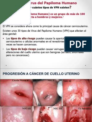 papillomavirus et bebe