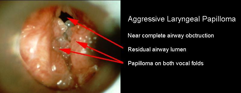 vocal cord papilloma voice therapy viermisori la adulti tratament