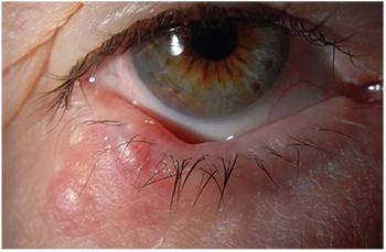 que es papilomatosis irregular