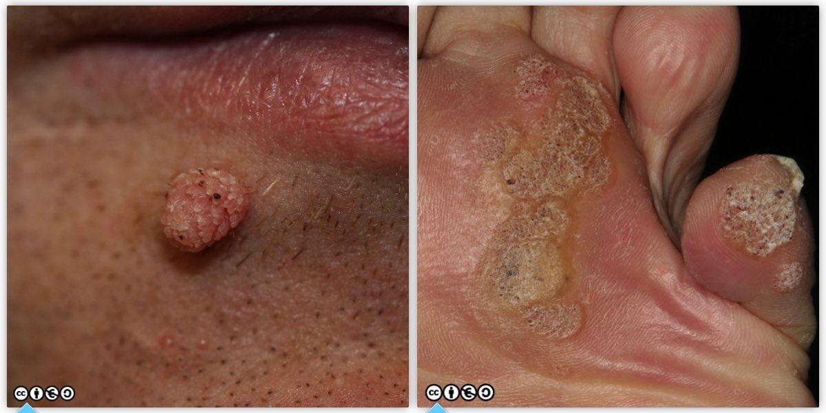 wart on face or skin cancer operation du papillomavirus