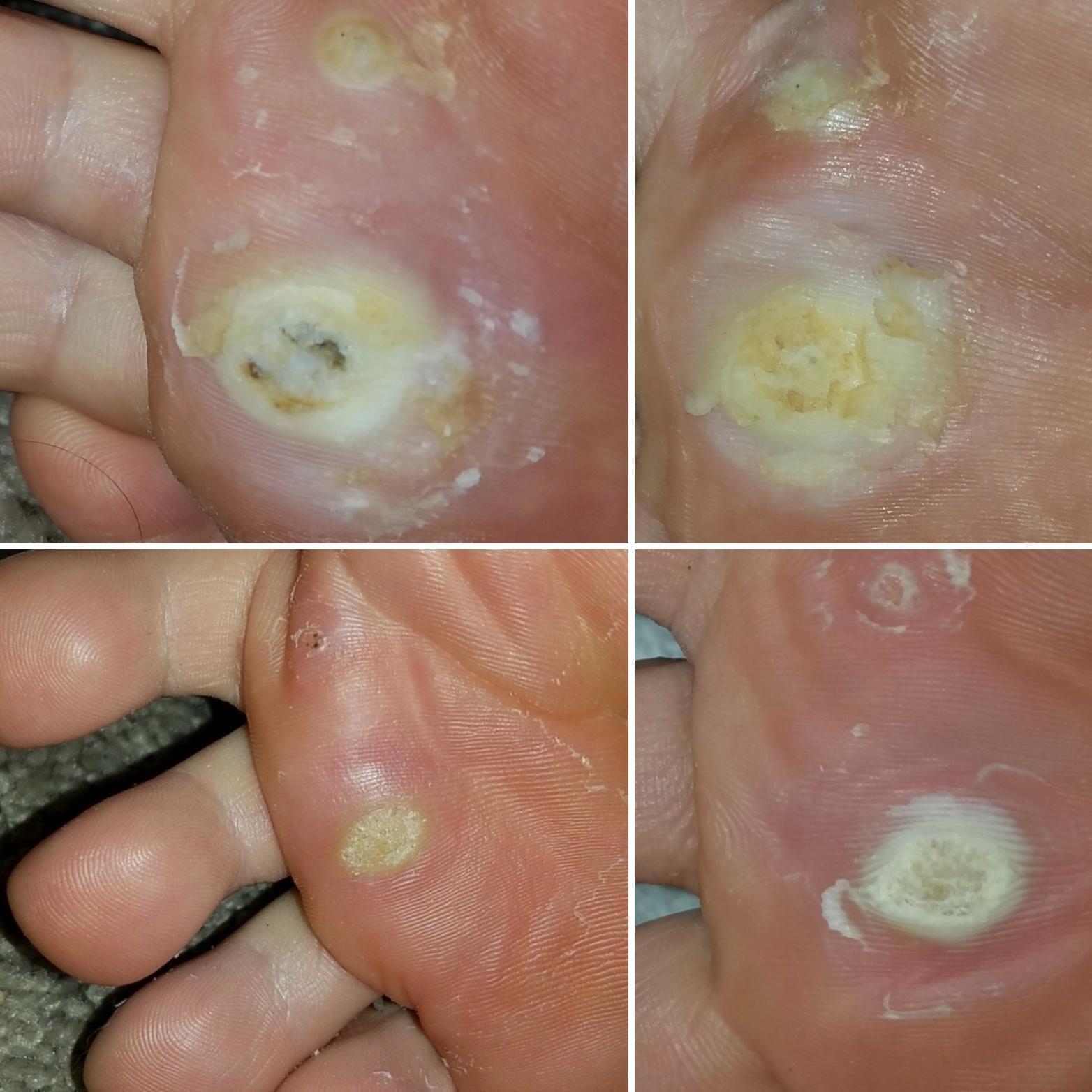 wart on foot throbbing medicamente pentru paraziti intestinali copii