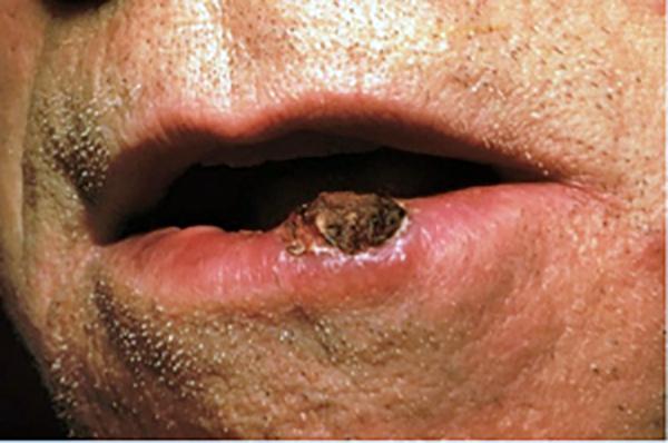 hiv brain cancer orez crud detoxifiere