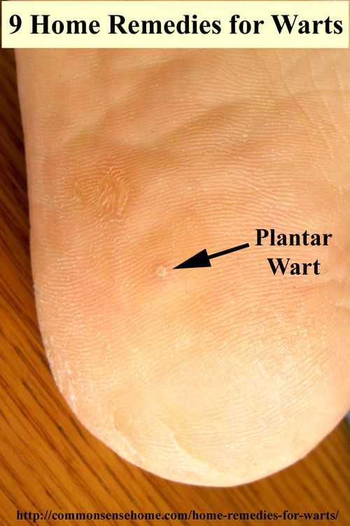 wart treatment in home