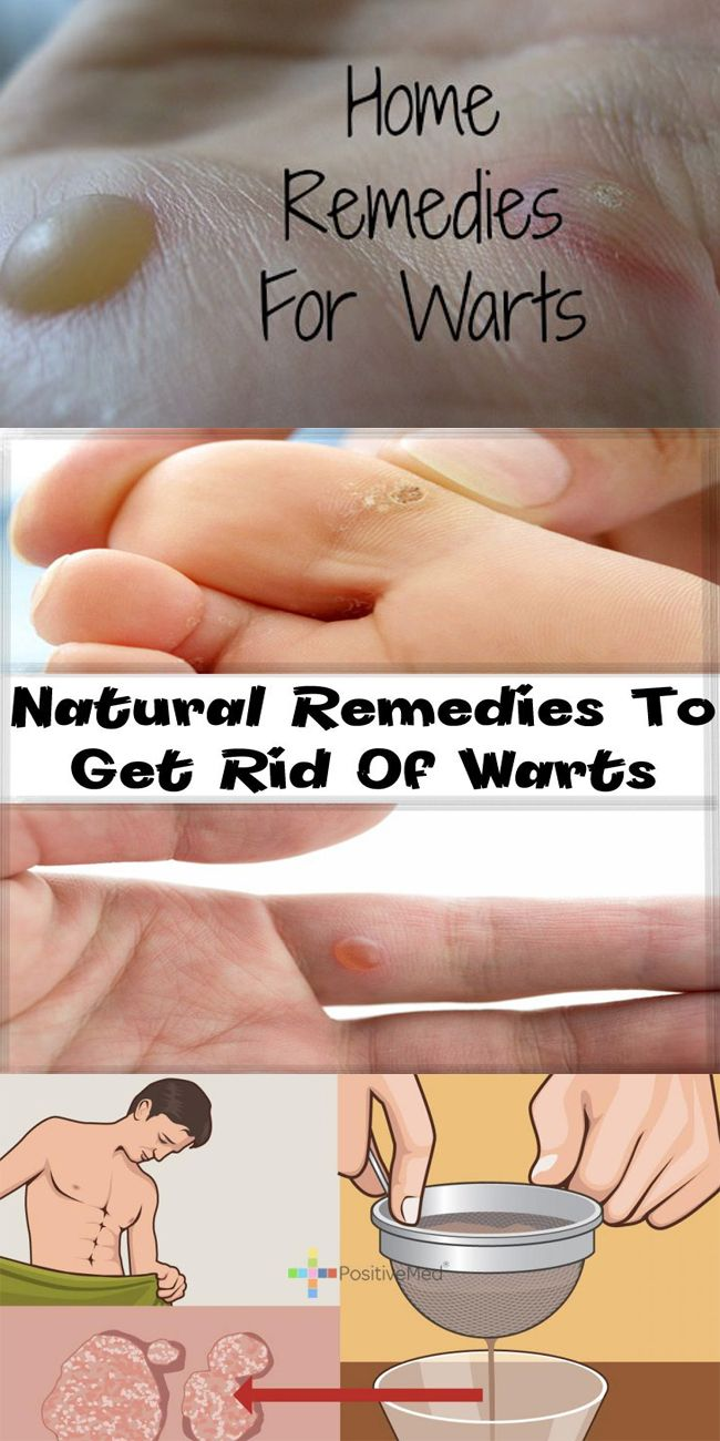 warts home remedy