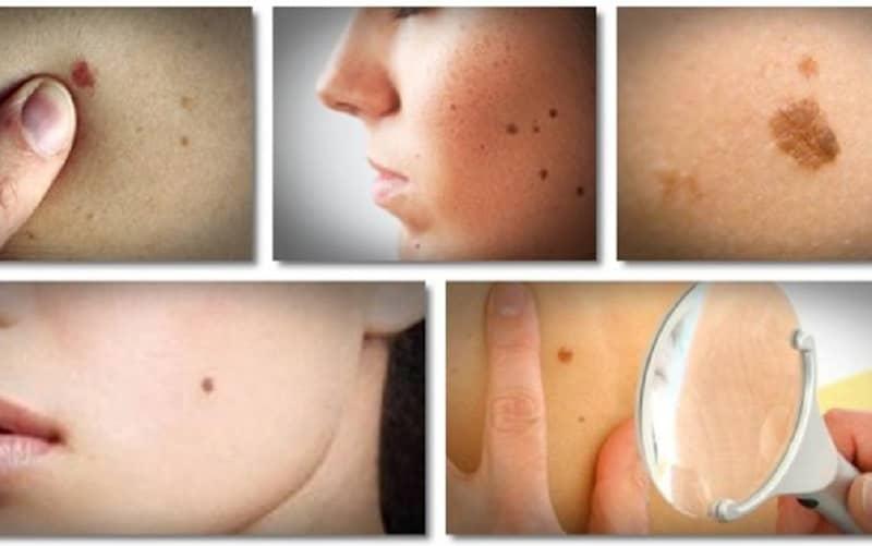 warts on elderly skin