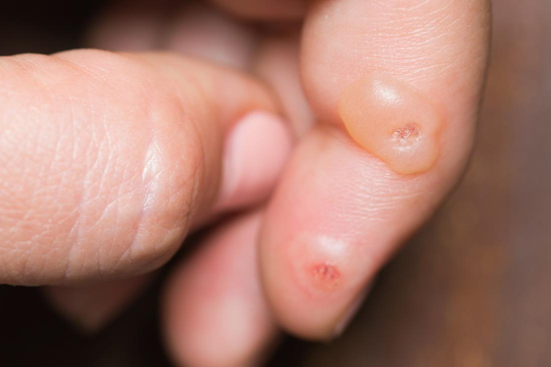 warts on hands black spots