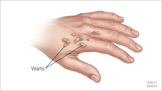 Healings from Sudeck syndrome