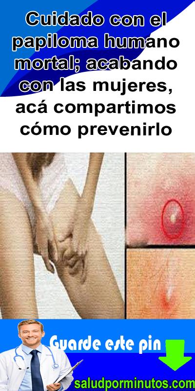 papiloma humano ovarios