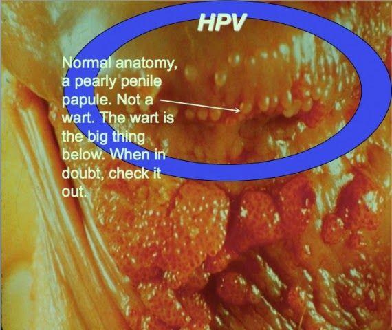 hpv warts versus herpes