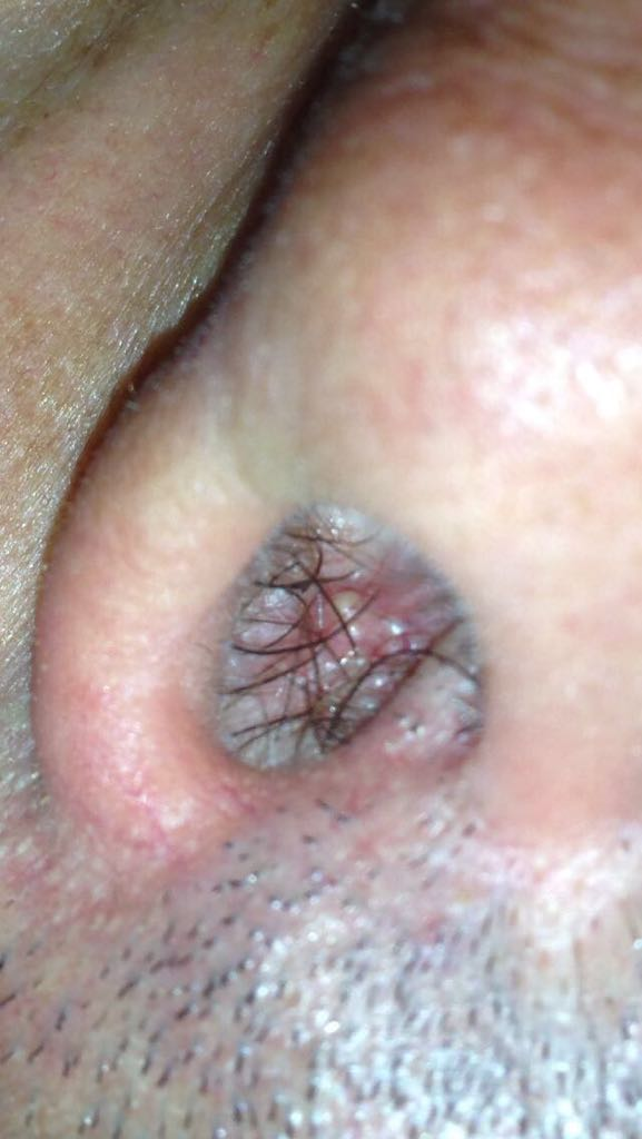 papilloma virus lesione