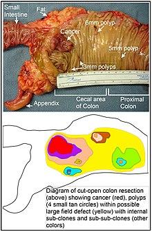 hpv papillom nedir cancer la plamani la copii