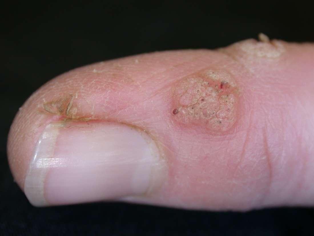 foot wart finger