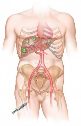cancer hepatic chimioterapie