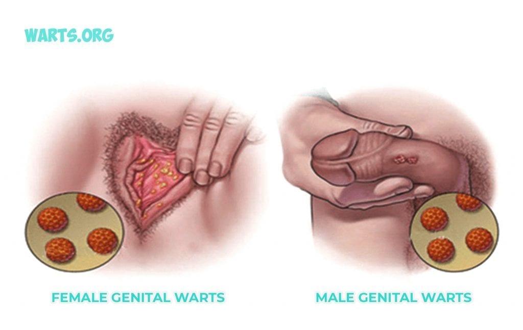 genital warts - Traducere în română - exemple în engleză | Reverso Context