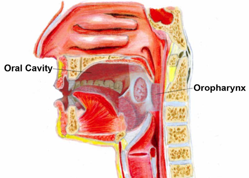 throat cancer caused by hpv virus