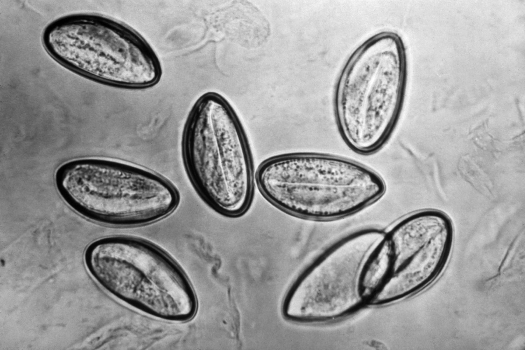enterobius vermicularis roundworm
