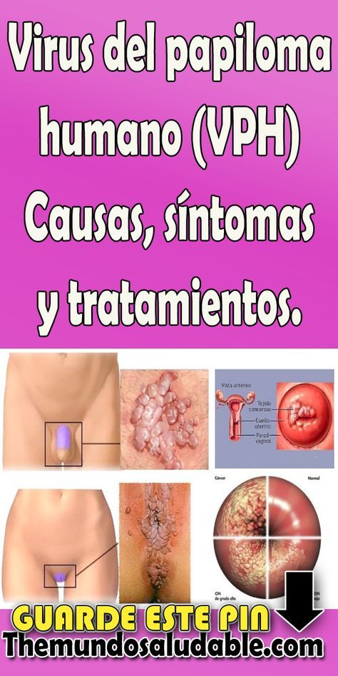 papiloma sintomas y tratamiento