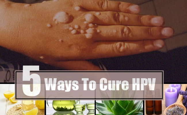 treating human papillomavirus