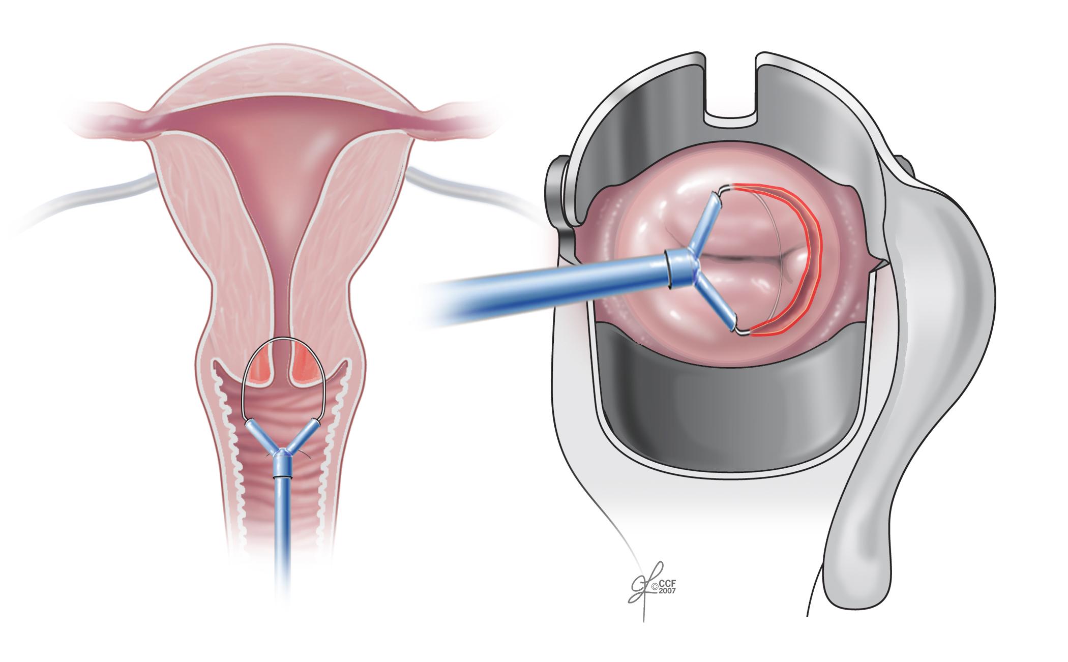 Cancerul de corp uterin(2017)