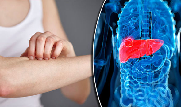 abdominal cancer nhs hpv positive base of tongue cancer