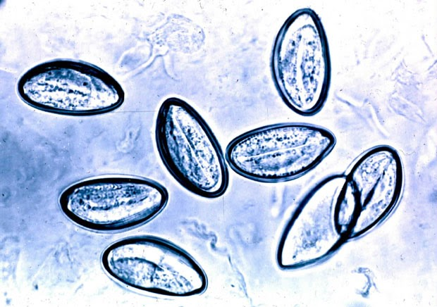 schistosomiasis blood test hpv warts foot