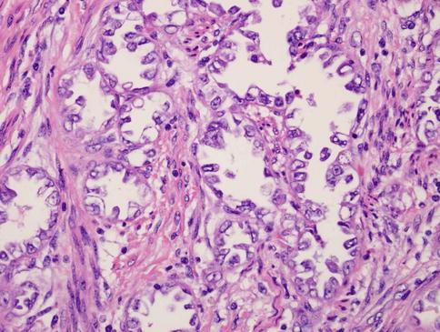 virus del papiloma humano hombres sarcoma cancer radiation treatment