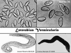oxiuriasis (enterobius vermicularis)